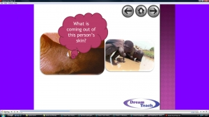 d) Guinea worm question time image